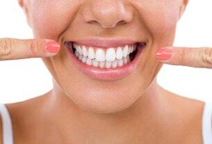 Diş beyazlatmak için etkili ve güvenilir tedavi: Bleaching
